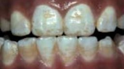 Dental-Fluorosis-Framed.jpg