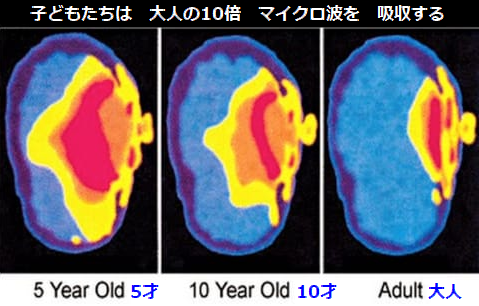 子どもの脳.png