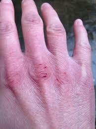 chapped hand.jpg