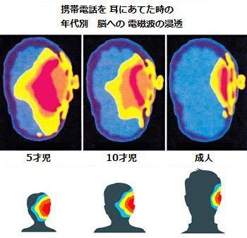 mobileradiationbrain.jpg