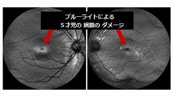 retina damage 5yearsold.jpg