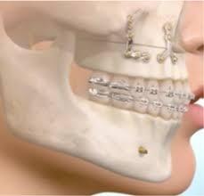 toothMetal.jpg